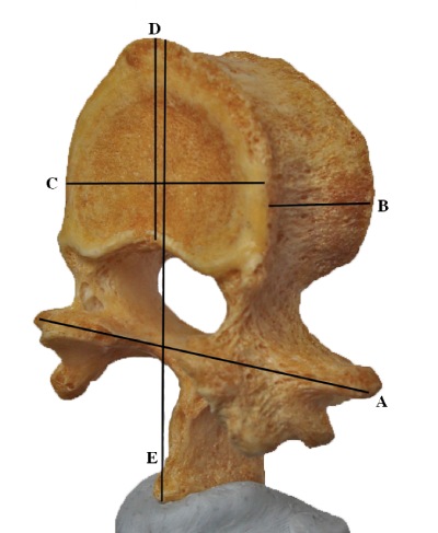 Three Dimensional (3D) Lumbar Vertebrae Data Set